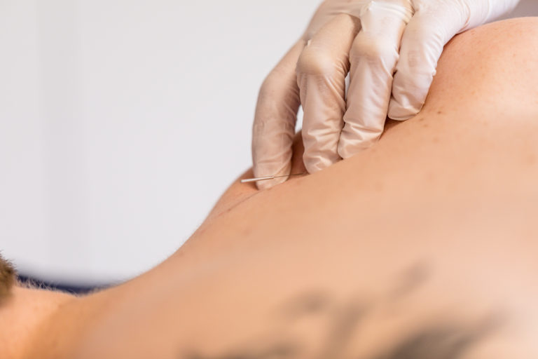 Dry Needling: What you need to know